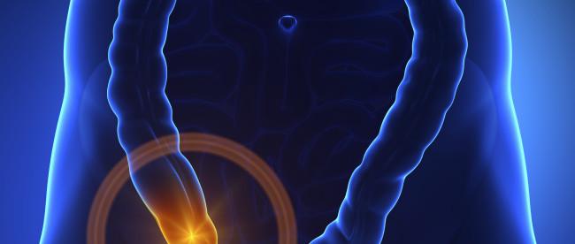 червебразный отросток топография в брюшной полости