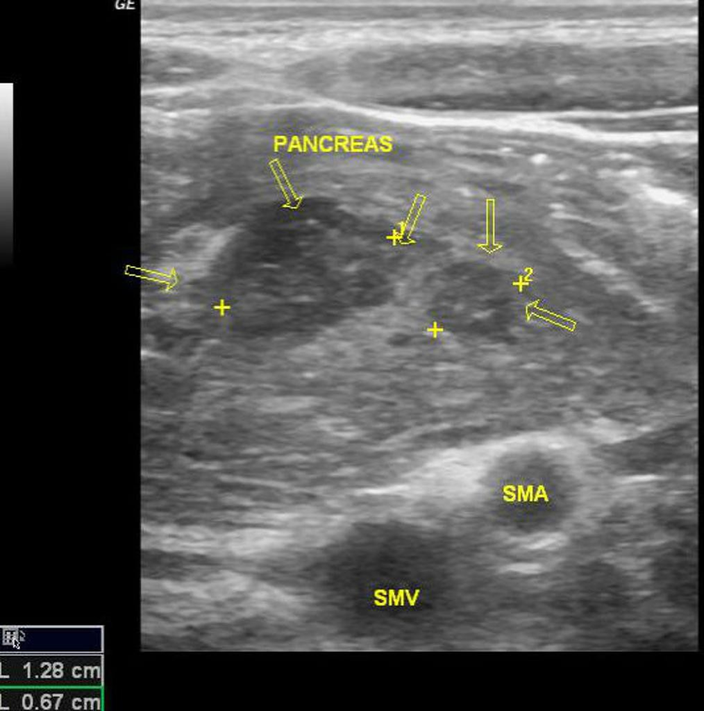 на изображении узи поджелудочной железы видны гипоэхогенные участки воспаления