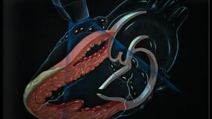 трехмерная проекция сердца человека и отмеченное расположение датчика во время процедуры чреспищеводной эхокардиографии
