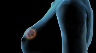 опухоль видна на схематичном изображении груди