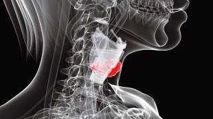 трехмерная проекция шеи женщины с выделенной щитовидной железой