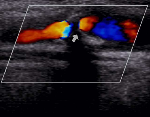 УЗИ картина стеноза сонной артерии
