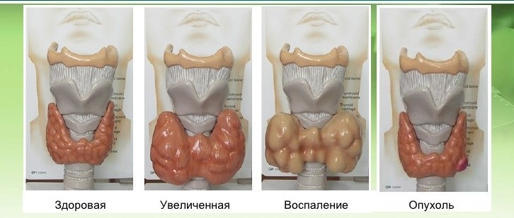 Объемные изображения щитовидной железы при различных болезнях в виде увеличения органа или же наличия новообразований