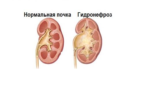Сравнение нормальной почки (слева) и почки при гидронефрозе (справа)