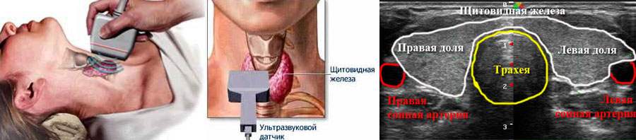 Процесс обследования и УЗИ-изображение на экране щитовидной железы