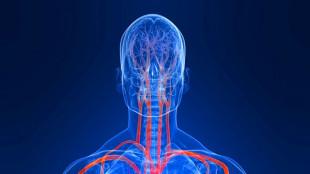 схематическое изображение сосудов головы
