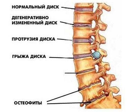 Поражения межпозвоночного хряща, костных и соединительнотканных структур, рост остеофитов и степень сдавления коронарных сосудов