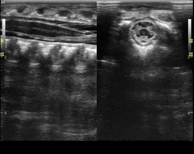 Изображение на экране мягких тканей, шейных позвонков и канала спинного мозга на УЗИ шейного отдела