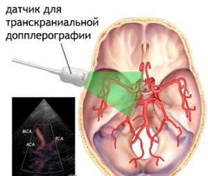 Ультразвуковой датчик, исследующий сосуды в черепной коробке