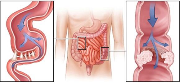 Процесс спаечной болезни, затронувший толстую и тонкую кишку