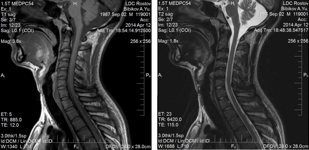 МР-томограмма шейного отдела позвоночника с применением контраста и без