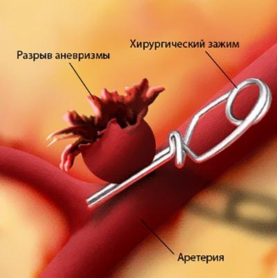 Хирургический зажим на артерии, способный отключить аневризму из процесса кровообращения