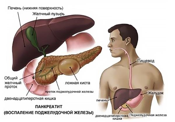 Расположение под печенью поджелудочной железы с ложной кистой в виде пузыря