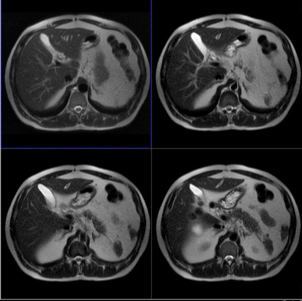 МР-томограммы брюшной полости