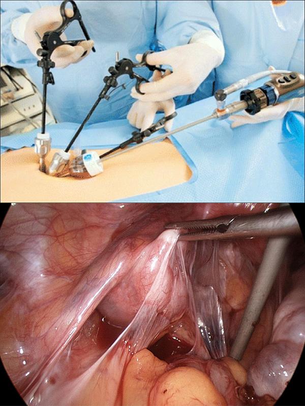 Суть метода лапароскопии заключается в ведении миниатюрных видеокамер и манипуляторов в брюшную полость через небольшие разрезы передней брюшной стенки и с последующем разрезанием спаек
