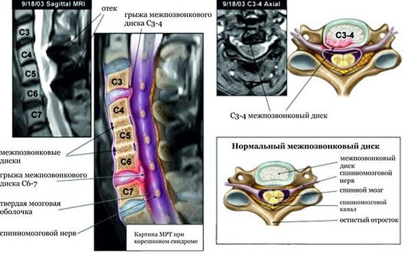 МРТ шейного отдела позвоночника с изображением грыжи межпозвоночного диска