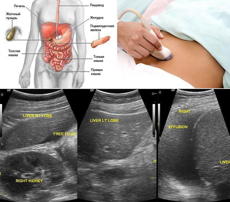 Обследование органов брюшной полости с выводом УЗИ-изображения на экран