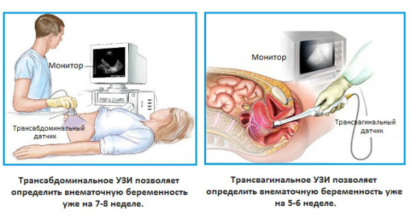 УЗИ 5 недель беременности