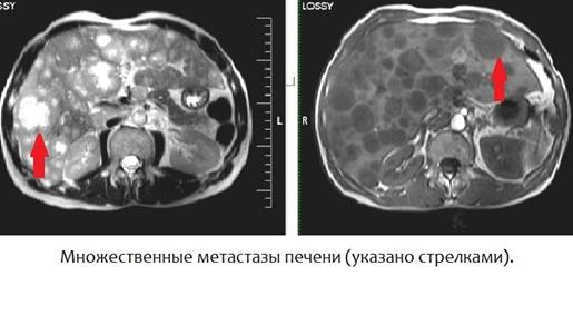томография печени