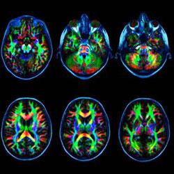 Снимок головного мозга после МРТ с контрастом