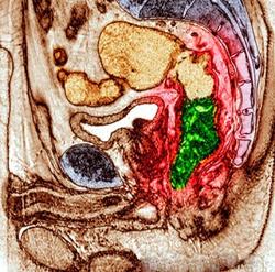 МРТ малого таза. Т2-взвешенная сагиттальная МРТ. Рак прямой кишки. Цветовая обработка изображения.