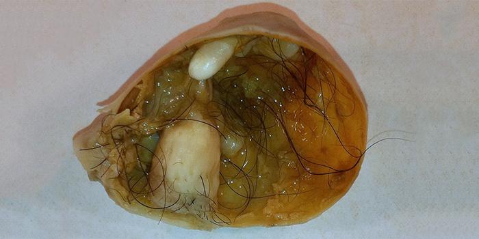 Как выглядит дермоидная киста яичника