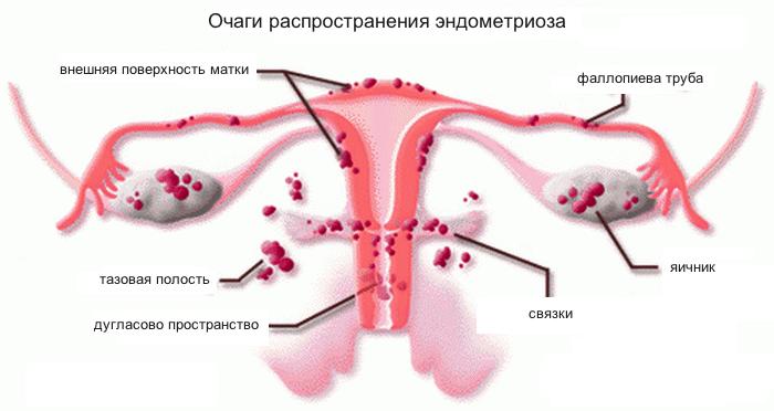 Очаги распространения эндометриоза