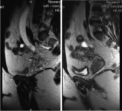 На снимке МРТ эндометриоидное поражение мечеточников