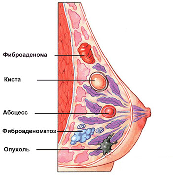 Виды опухолей молочной железы