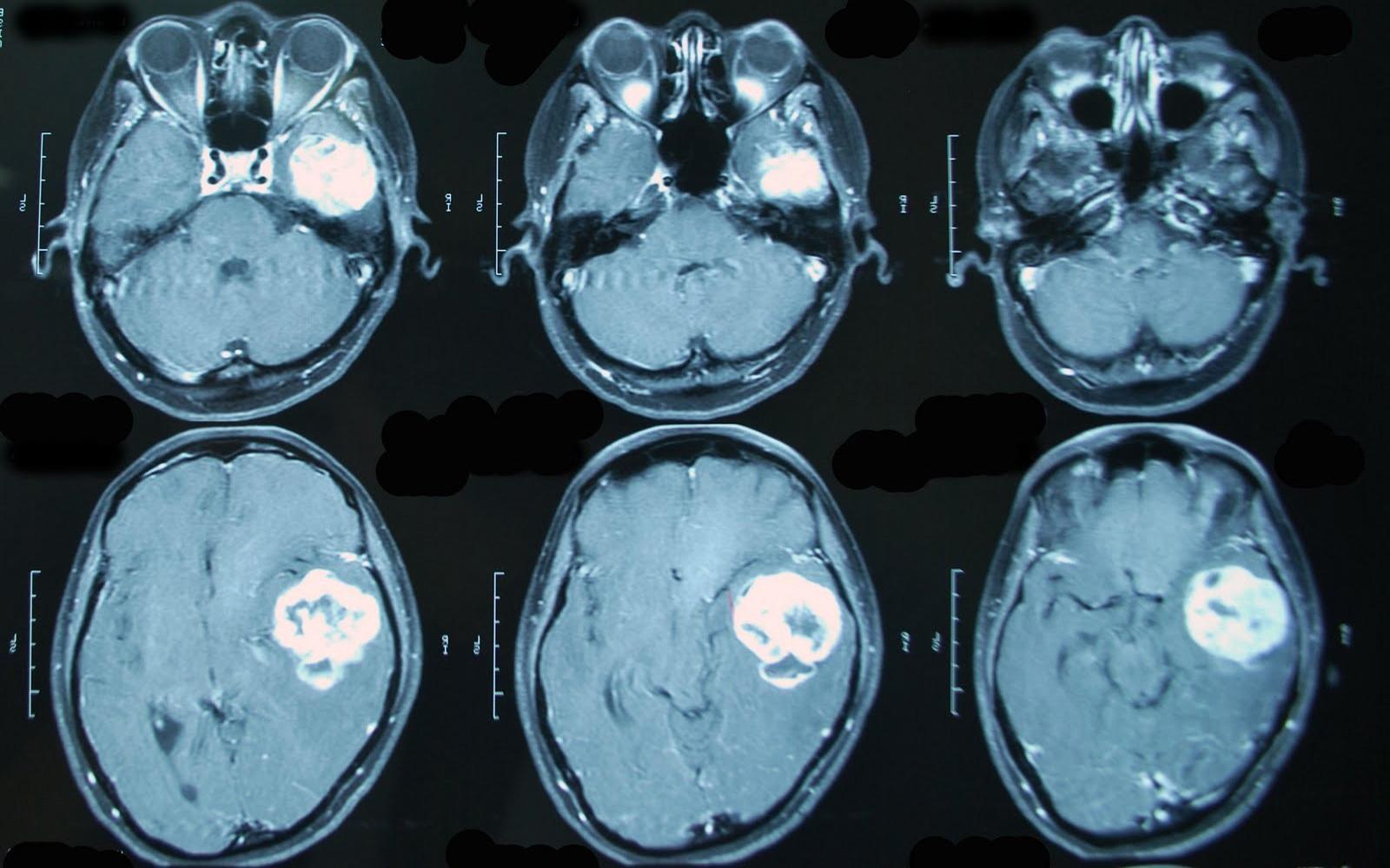 МРТ головного мозга (опухоль на снимке)