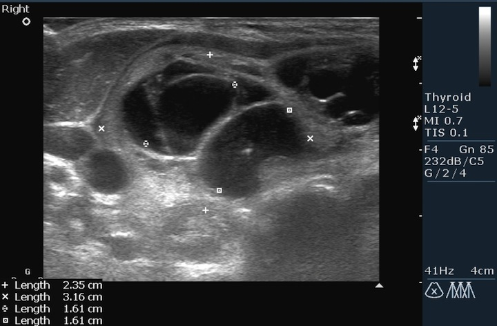 Множественные узлы и кистозные образования в увеличенной правой доле щитовидной железы.