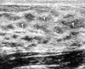 Молочная железа пациентки, 16 лет, с нормальным менструальным циклом. Отчетливо выражен сетчатый рисунок молочной железы: 1 - перигландулярная строма; 2 - опорная строма.