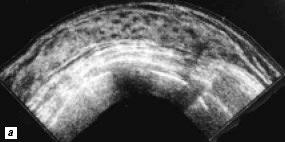 Молочная железа пациентки, 24 года: а - до беременности, с отчетливо выраженной сетчатой структурой молочной железы;