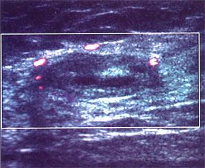 Допплерография молочной железы.Огибающий кровоток фиброаденомы