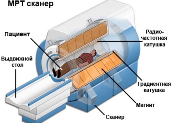 На рисунке схема работы аппарата МРТ