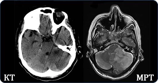На снимке два изображения головного мозга выполненных способами КТ и МРТ