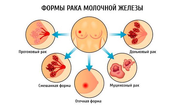Формы рака груди