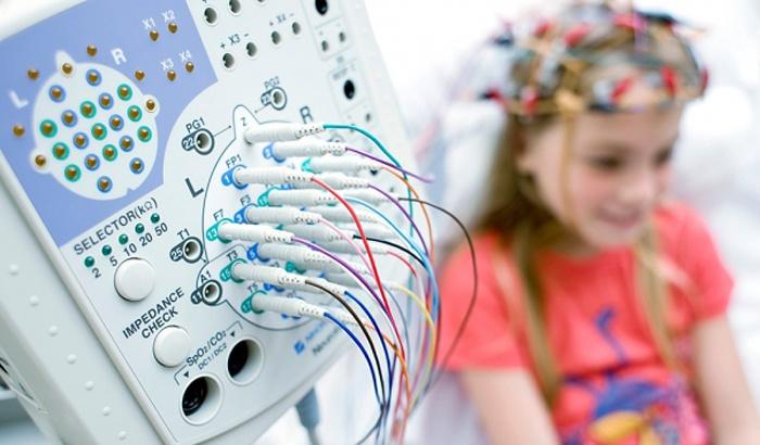 Ребенку проводят ЭЭГ головного мозга