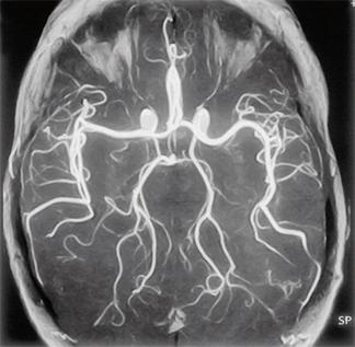 мрт мозга и сосудов мрт сосудов головного мозга