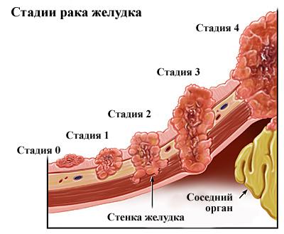 Стадии развития рака желудка (рисунок)