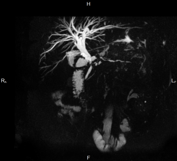 Пример снимака МРТ-холангиографии