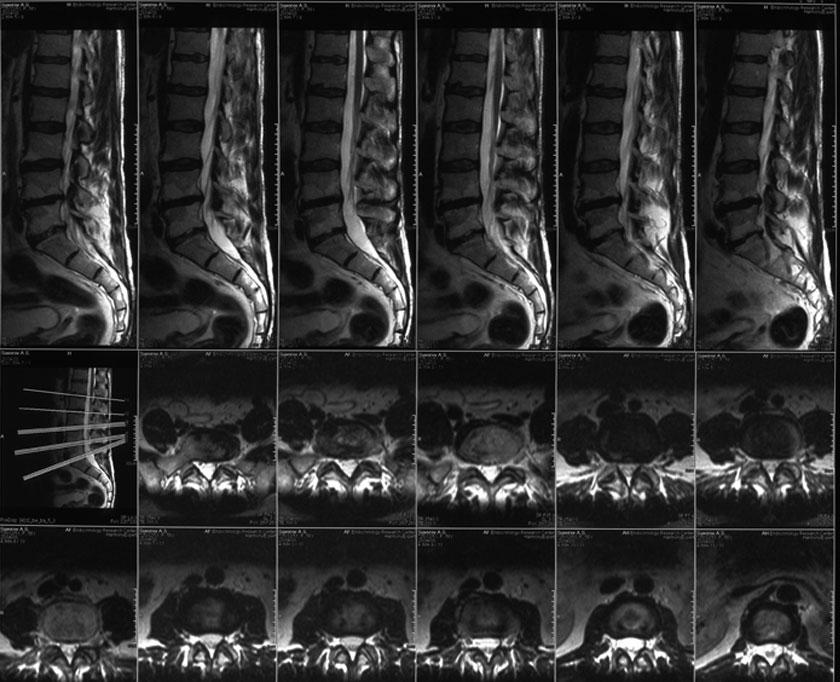Пример снимка МРТ поясничного отдела