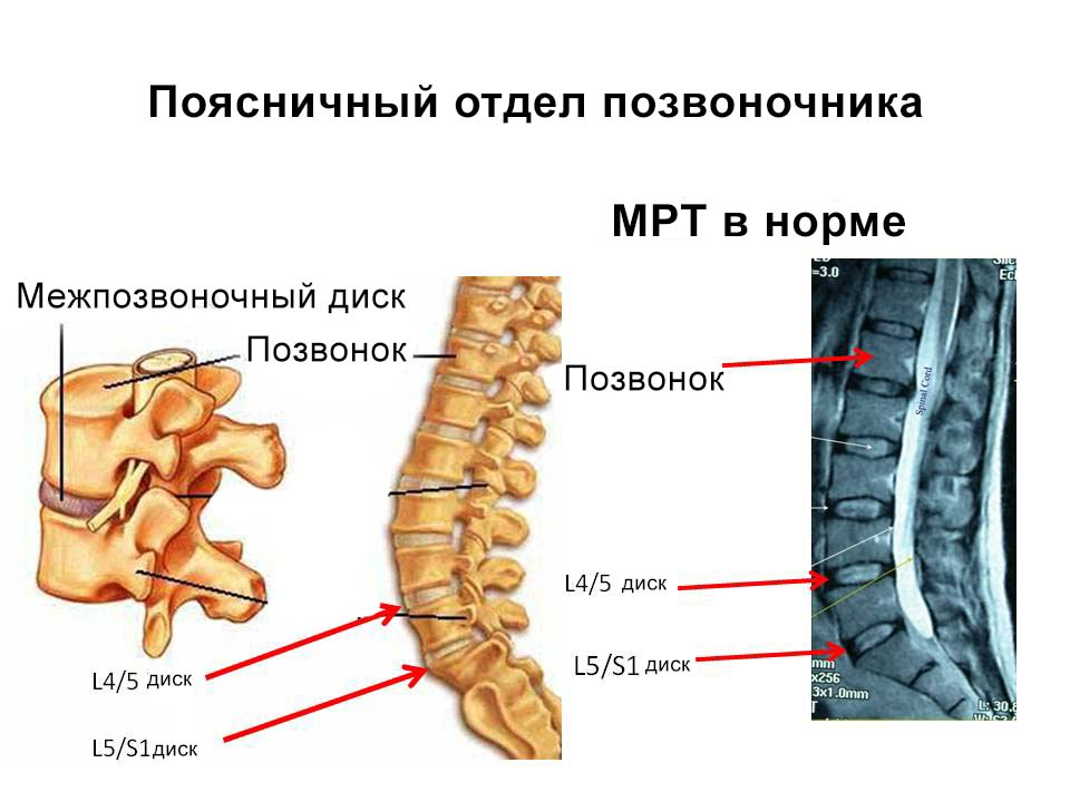 На картинке изображен здоровый позвоночник визуально и на снимке МРТ