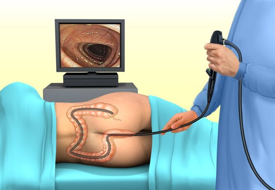 На рисунке схематично представлена процедура колоноскопии