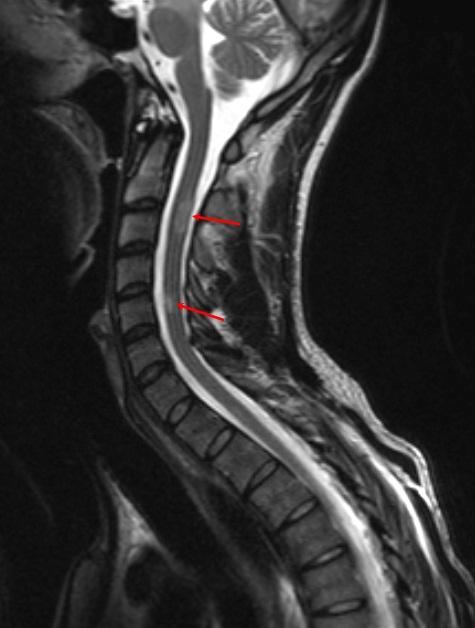 Очаги демиелинизации в спинном мозге при рассеянном склерозе в шейном отделе на снимке МРТ
