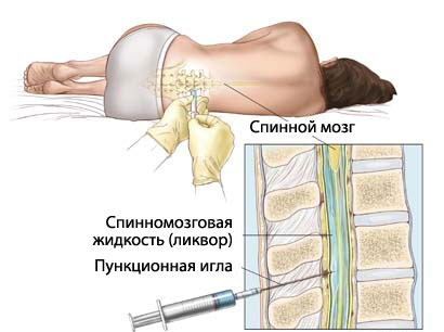 На рисунке схематично изображена техника проведения люмбальной пункции у женщины