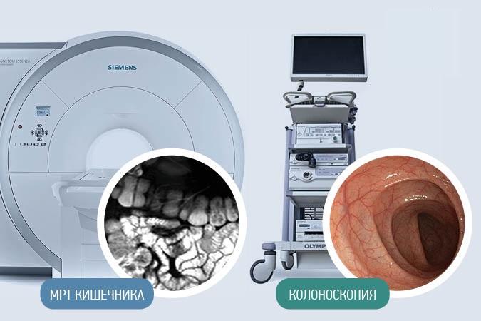 Сравнение МРТ и колоноскопии