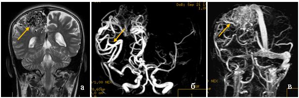 МРТ головного мозга нааксиальной и фронтальной проекциях в режиме T_2(а, б). В проекции межножковой цистерны эксцентрично справа определяется неправильной формы гипоинтенсивный участок. На МР-ангиограмме (в) участок представляет собой конгломерат аномально развитых сосудов, исходящий из правой задней коммуникантной артерии