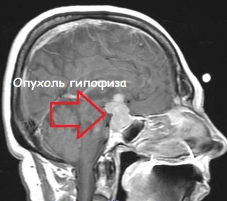 На КТ снимке головного мозга отчетливо видна опухоль