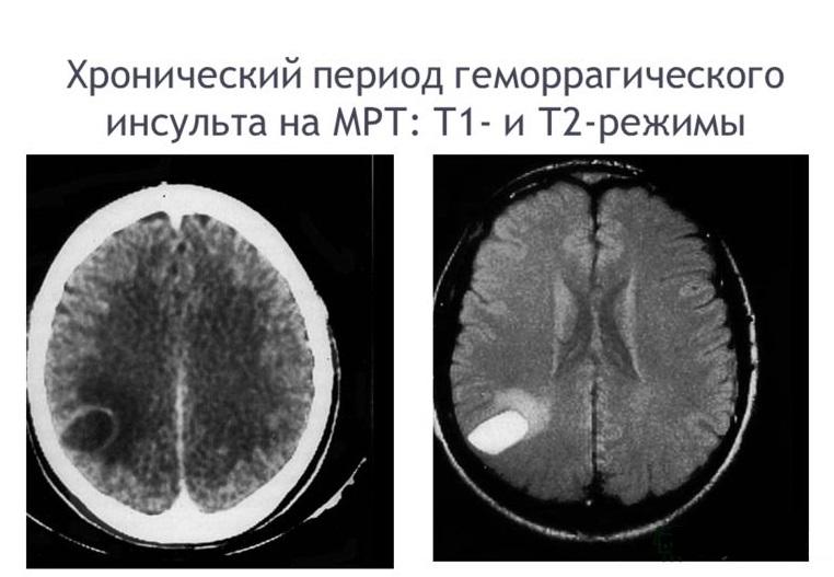Геморрагический инсульт на снимке МРТ